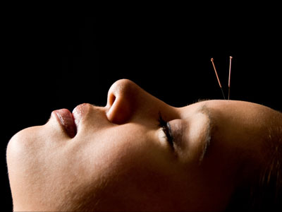 Acupuncture - Facial rejuvenation